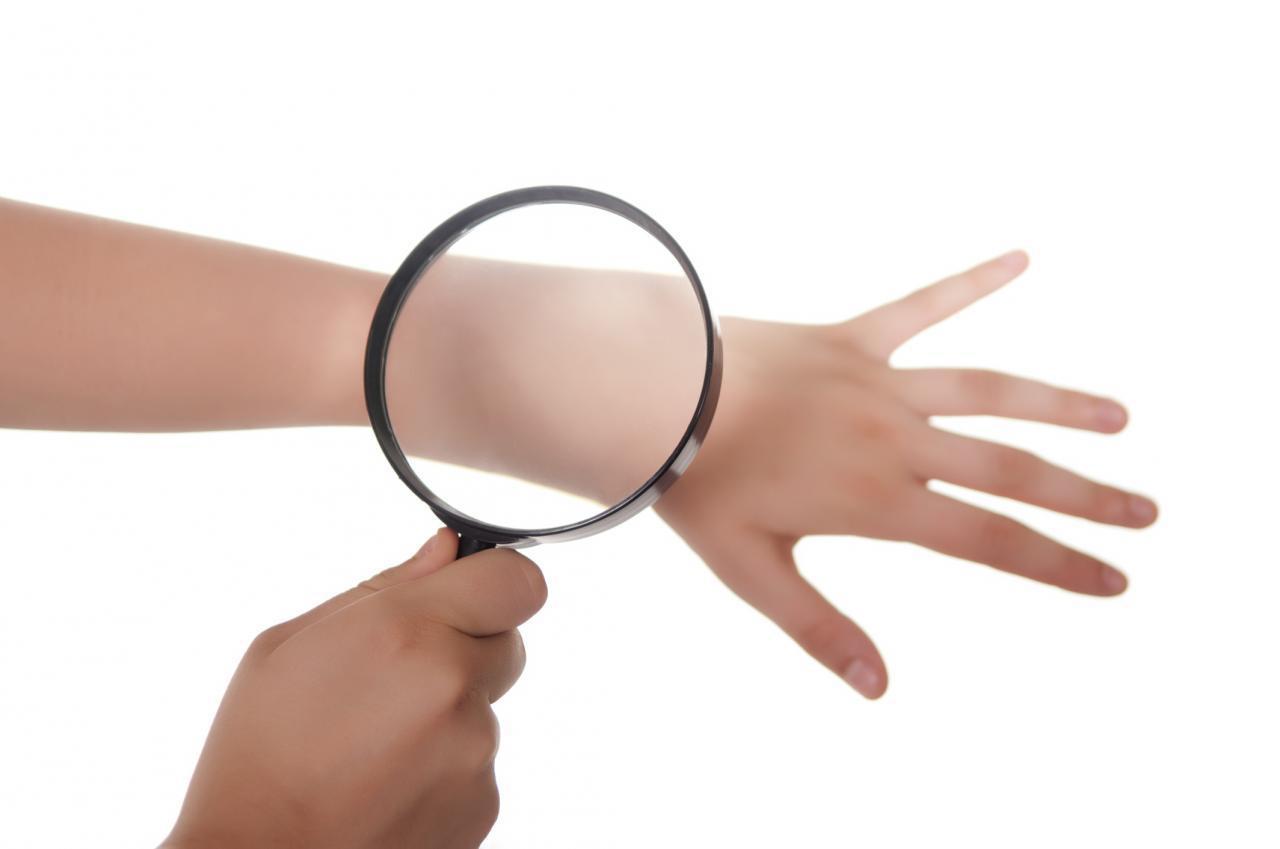 Лечебное влияние озонотерапии при дерматологических заболеваниях
