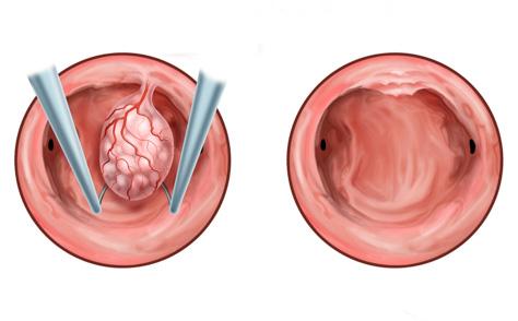 Видалення поліпа за допомогою гістероскопії