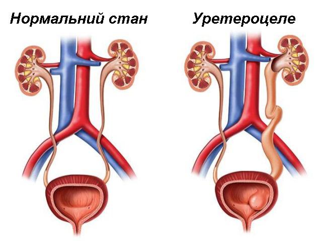 Порівняння нормального стану сечоводу та уретероцеле