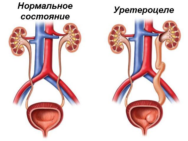 Сравнение нормального состояния мочевода и уретероцеле