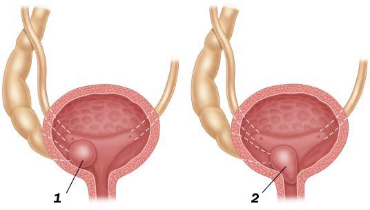Варіанти розташування уретероцеле: 1) у шийці сечового міхура; 2) у сечовипускному каналі