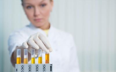 Исследование анализа мочи при раке мочеточников