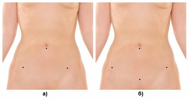 Типичные места установки троакаров при: а) лапароскопической овариэктомии; б) лапароскопической гистерэктомии
