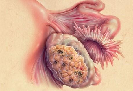 Рак яєчника