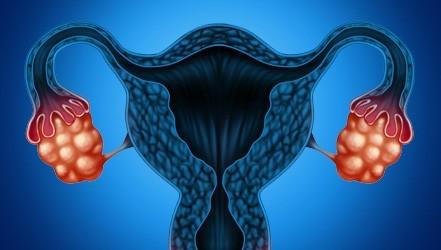 Рак яєчників у жінок