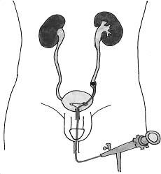 Использование гибкого эндоскопа