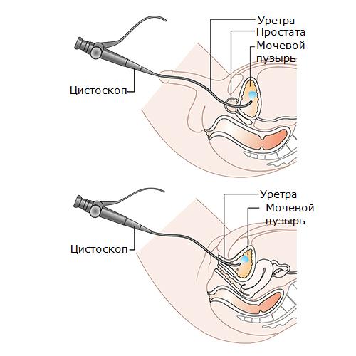 Трансуретральный доступ к мочевому пузырю