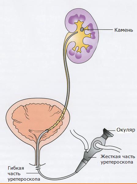 Доступ через уретру