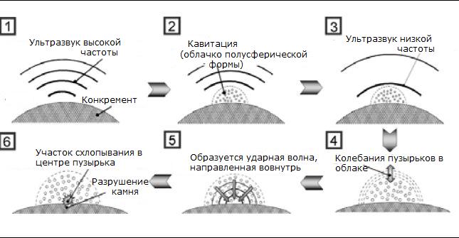 mekhanizm-deystviya-ultrazvuka
