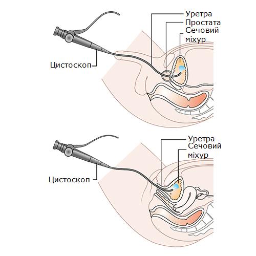Трансуретральний доступ для цистолітотрипсії