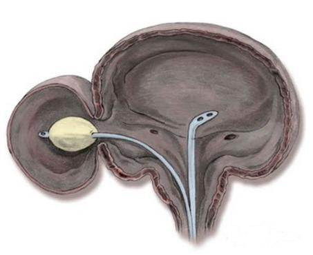 Дивертикул мочевого пузыря с заведенным в его полость катетером