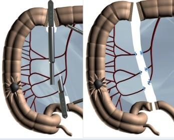 Мобілізація ураженого фрагменту, накладання зшивального апарату та відсічення хворої кишки