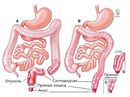 Удаление рака прямой кишки с сохранением сфинктерного аппарата