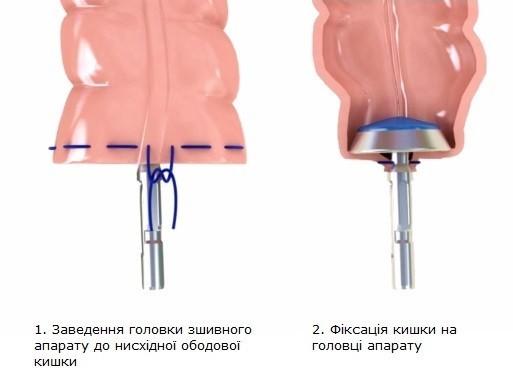 Перші два етапи малоінвазивної операції з видалення раку прямої кишки