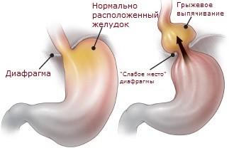 Грыжа пищеводного отверстия диафрагмы
