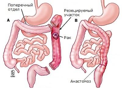 Схема операции при раке поперечного отдела ободочной кишки