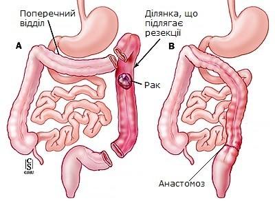 Схема лівосторонньої геміколектомії при раку нисхідного відділу товстої кишки