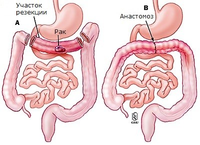 Схема операции при раке нисходящего отдела ободочной кишки