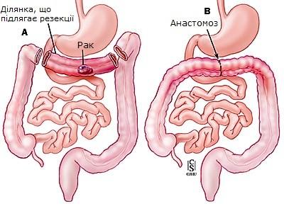 Схема операції при раку поперекового відділу ободової кишки