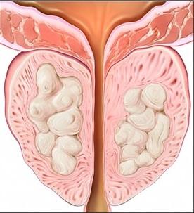 Изменения в предстательной железе, возникающие под влиянием хронического простатита