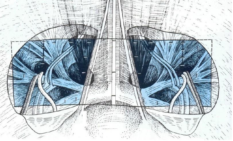 Наложение и фиксация сетки при двусторонней герниопластике