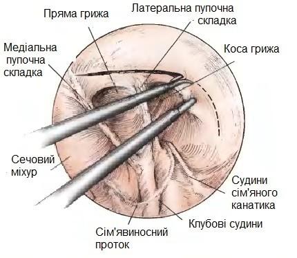 Схема розрізу очеревини