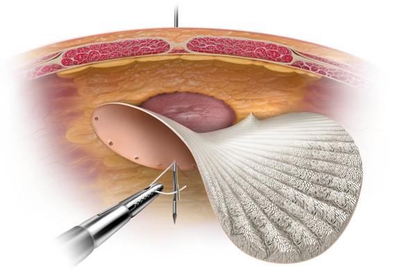 Наложение сетчатого импланта на пупочное кольцо