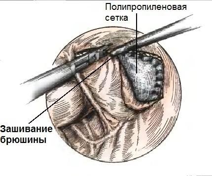 Этап ушивания брюшины