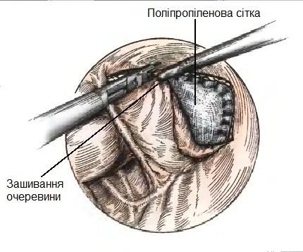 Етап зашивання очеревини