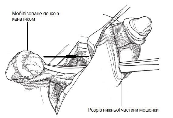 Заведення яєчка до мошонки через розріз у її нижній частині