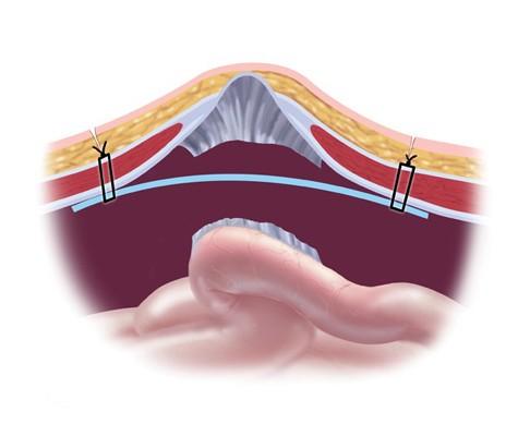 Грыжевые врата надежно перекрыты сетчатым имплантом