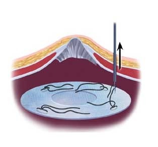 Схема подведения импланта к грыжевым вратам