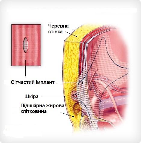Накладення та фіксація сітчастого імпланту на грижові ворота