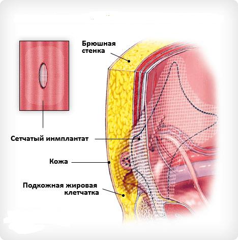 Установка и фиксация сетчатого импланта
