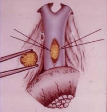 Вариант проведения литоекстракции