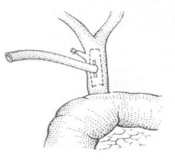 Т-образный дренаж по Керу