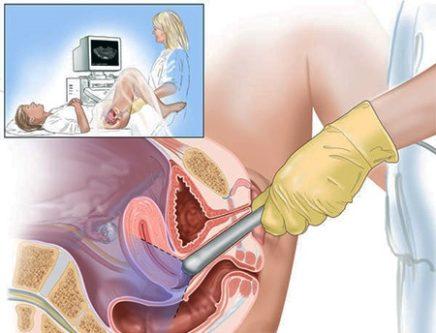 Гінекологічне УЗД трансвагінальним доступом