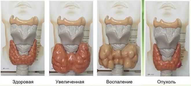 УЗИ выявляет такую патологию щитовидной железы