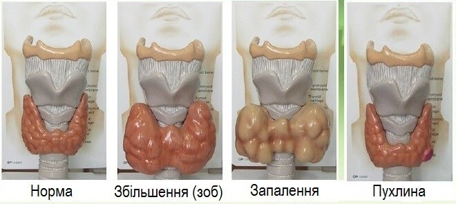 Виявленная хвороб щитовидки на УЗД