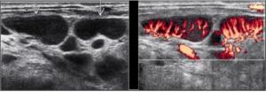 Ультразвуковая диагностика в Клинике Биляка