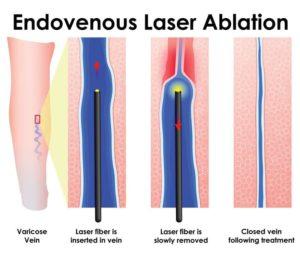 Лазерне видалення варикозу