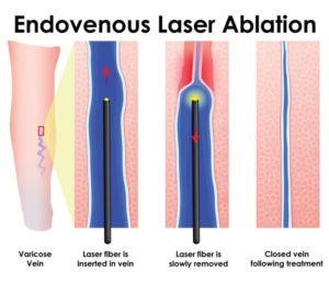 лазерное удаление варикоза