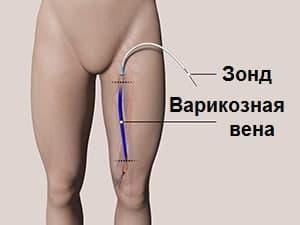 Операції з видалення варикозу