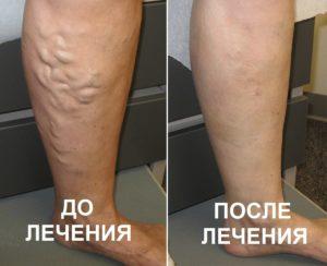 Варикозне розширення вен нижніх кінцівок до і після