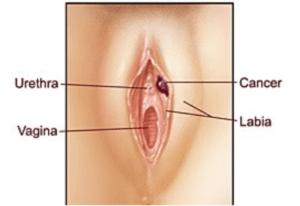 Рак вульви