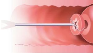 Біопсія шийки матки