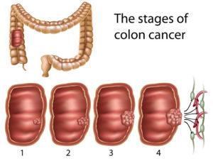 Cтадії раку сигмовидної кишки