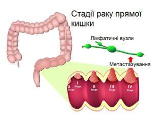 Стадії раку прямої кишки