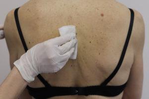 лікування кератом