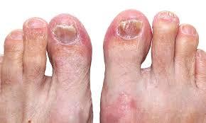 Грибок нігтів